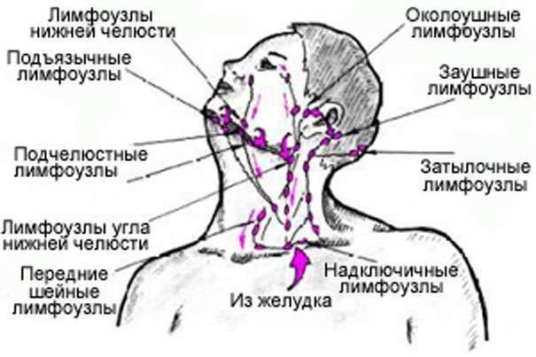 воспаленных лимфоузлов на