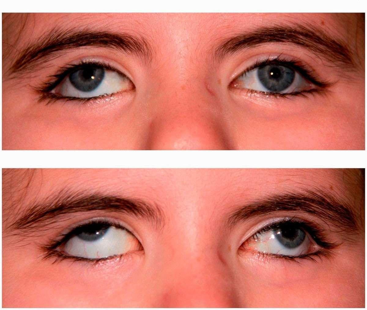 инсульт глаза лечение симптомы