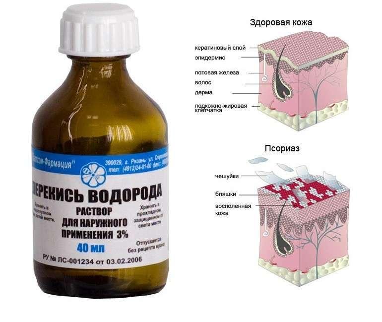 Как пищевой содой вылечить псориаз на теле человека