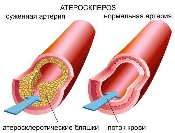 Что такое референсные значения в анализе крови на холестерин