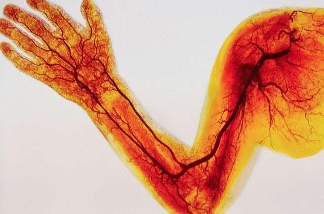 Лечение атеросклероза верхних конечностей