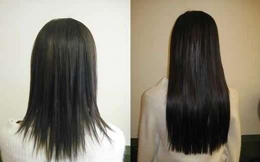 Курс дарсонваль для волос