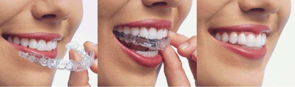 Отбеливание зубов в тамбове отзывы