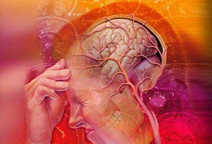 Причины гипертонии головного мозга