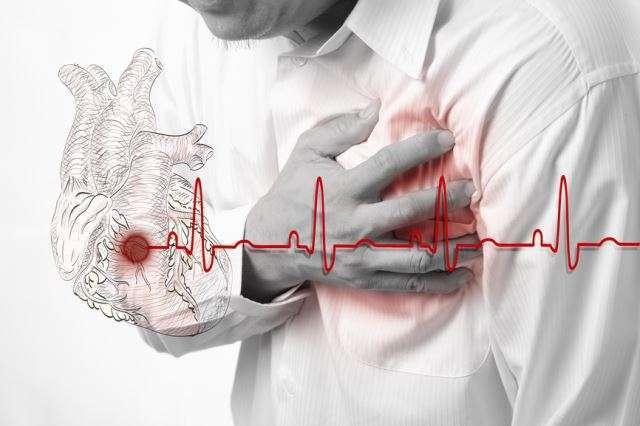 инфаркт симптомы лечение реабилитация