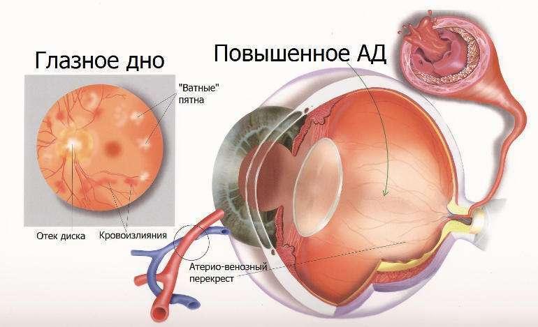 гипертония глаза