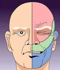 Воспаление тройничного нерва - медикаментозное лечение