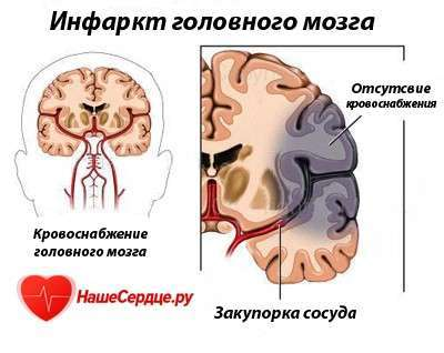 инфаркт головного мозга реабилитация