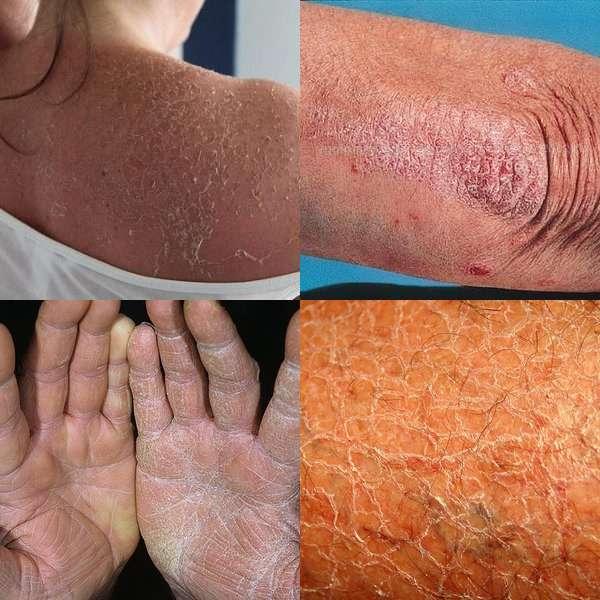 сухая кожа аллергия