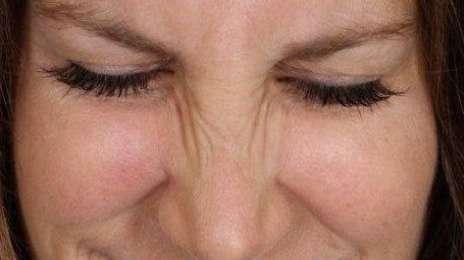 морщины возле носа