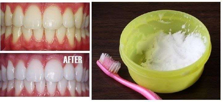 Как отбелить зубы быстро и эффективно в домашних условиях на