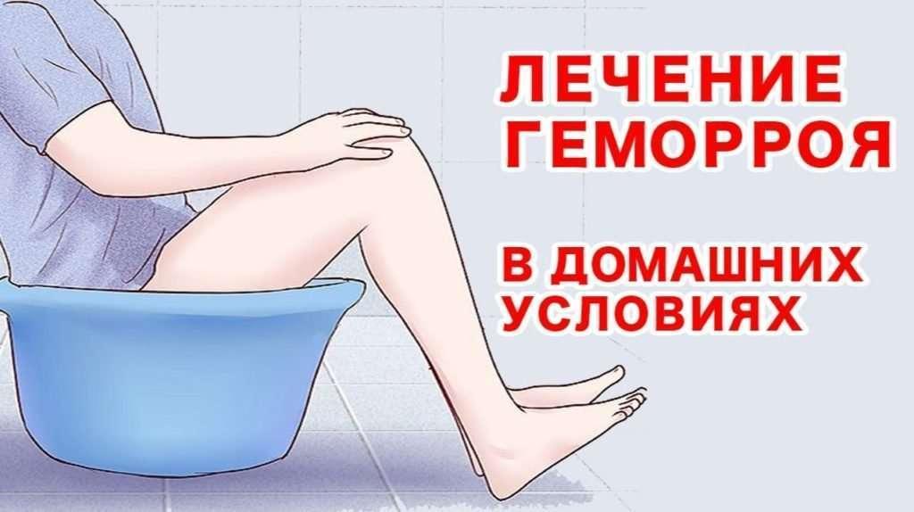 Профилактика лечения геморроя в домашних условиях