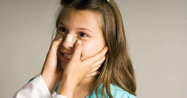 сломан нос у ребенка