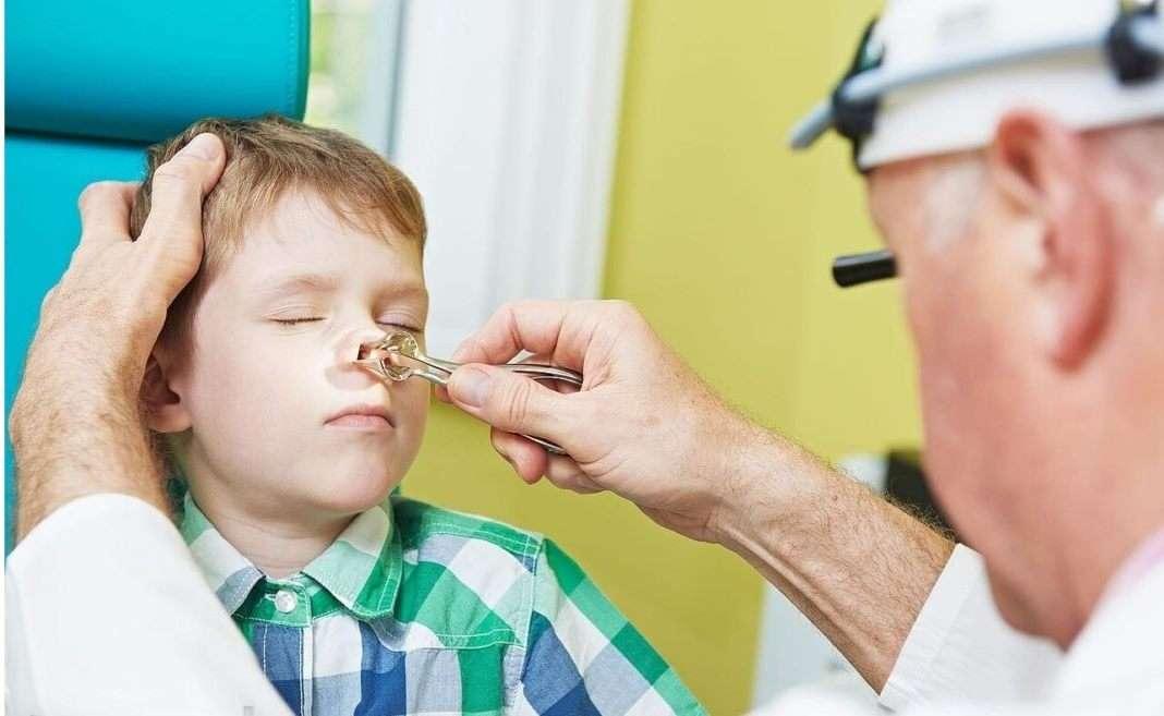 как узнать сломан нос или нет у ребенка