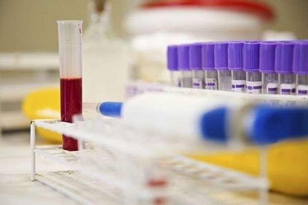 Анализ крови норма пти у мужчин