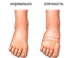 Посмотрите, как выглядят ваши ножки. Фото с сайта http://www.moya-lyalyas.ru/
