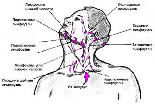 Чем лечить если воспалился лимфоузел на шее в домашних условиях