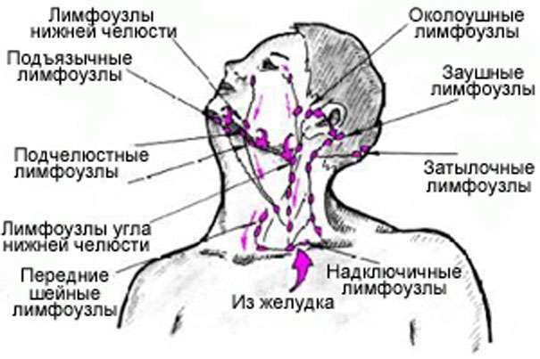 Воспаление лимфоузлов на ухе лечение в домашних условиях