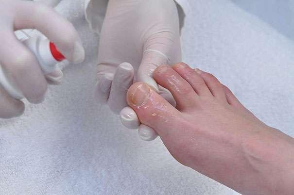 Ногти на ногах посинели лечение