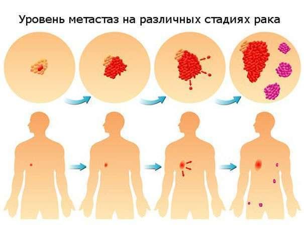 Узбекистана как распознать рак на ранней стадии кости вся страна