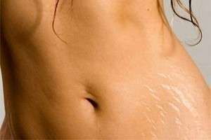 Беременность: как избежать растяжек?