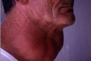 Щитовидная железа у мужчин: болезни их лечение и симптомы