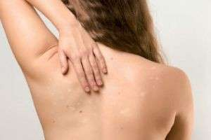 Белые пятна на коже после загара: причины возникновения и способы лечения