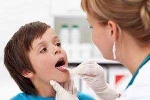 Фарингит у детей: лечение в домашних условиях, советы врачей