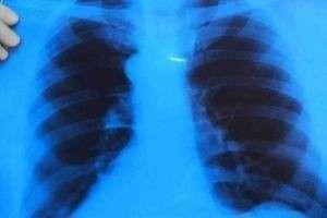 Как очистить лёгкие после курения — доступные методы