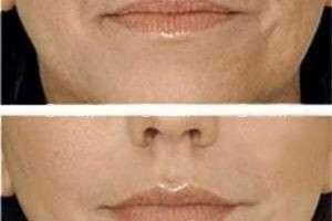 Плазмолифтинг – естественное омоложение кожи