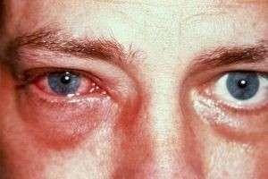 Лечение вирусного конъюнктивита у взрослых и детей медикаментами и народными средствами