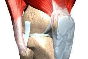 Какой эффективный способ устранения дефектов кости используется в современной медицине?
