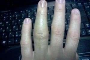 Способы лечения опухшего пальца