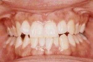 Сколько у людей зубов?