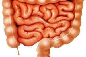Кандидоз кишечника: что это и как с этим бороться