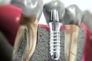 Зубные импланты. Хорошо это или плохо?