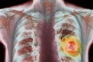 Что такое рак легких. Первые признаки рака легких