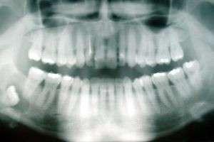 Зачем нужны зубы мудрости и стоит ли их оставлять