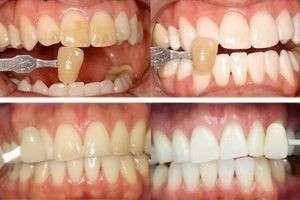 Методы отбеливания зубов: народные и клинические способы