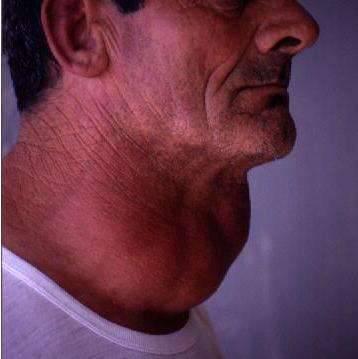 Щитовидная железа: болезни у мужчин, симптомы и лечение