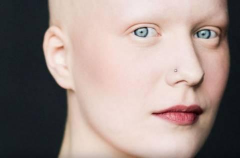 Человек без бровей и ресниц: чем вызвано такое состояние?