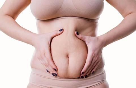 Что значит диастаз, опасен ли и как с ним справиться?