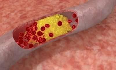 Атеросклероз церебральных артерий, его признаки и лечение