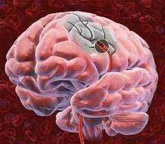 Атеросклероз головного мозга: симптомы и диагностика заболевания