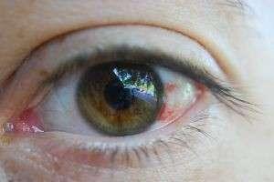 Почему лопаются сосуды в глазах, что делать и можно ли помочь себе самостоятельно?