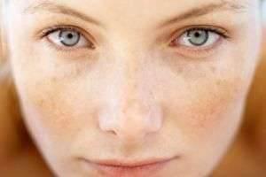 Пигментные пятна на лице: причина и лечение различными способами