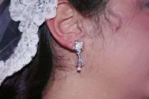 К чему горит левое ухо: приметы и медицинские показания