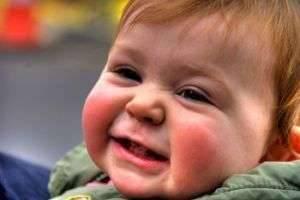 Диатез у новорожденных: важность лечения