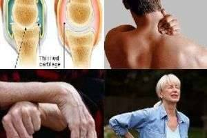 Что такое воспаление суставов?