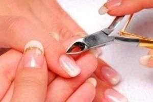 Как убрать заусенцы на пальцах
